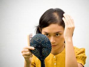 rambut-rontok1